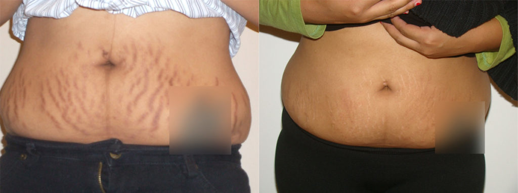 Stretch Marks Removal Home Remedy